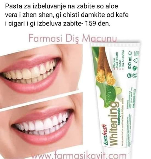 Zubne fasete podgorica