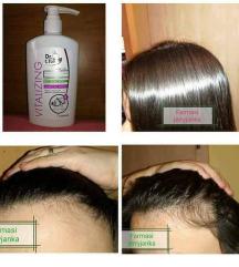 Шампон од лук против опаѓање на косата ✔✔