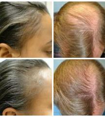 Serum Za Rast i Obnova na Kosa