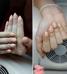 Nalivni nokti